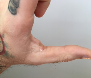 Thumb Callous